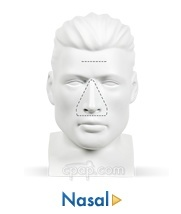 Nasal Mask Overview
